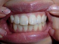 ★歯フェチ写真★アキバでゲット!レナちゃんの歯
