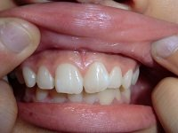 ★歯フェチ写真★18歳ボーイッシュな女子学生の歯