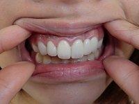 ★歯フェチ写真★23歳差し歯女子の歯