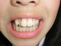 ★歯フェチ写真★18歳清楚●リ系短大生の歯