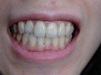 ★歯フェチ写真★26歳【まゆみちゃん】の歯