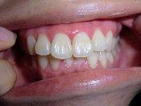 ★歯フェチ写真★フリーター【えみちゃん】の歯