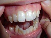 ★歯フェチ写真★25歳モデルさんの歯
