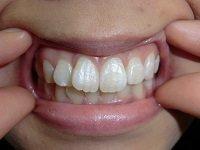 ★歯フェチ写真★素朴系女子大生の歯