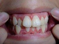 ★歯フェチ写真★18歳専門学校生の歯