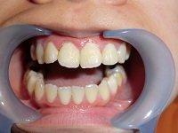 ★歯フェチ写真★●Cみたいな20歳女の子の歯