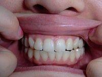★歯フェチ写真★特大クレーター持ち22歳女子の歯