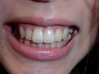 ★歯フェチ写真★22歳【しおりちゃん】の歯