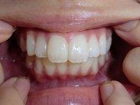 ★歯フェチ写真★21歳フリーターの歯