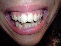 ★歯フェチ写真★9名収録★ケータイで撮影した女性の歯
