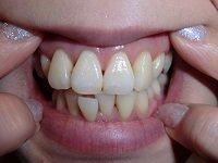★歯フェチ写真★アラフォー【さえこさん】の歯