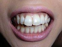 ★歯フェチ写真★ギャル系デリヘルガールの歯の移り変わり