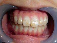 ★歯フェチ写真★歯並びキレイでも、着色が目立つ女の子の歯