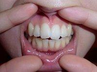 ★歯フェチ写真★21歳【りんごちゃん】の歯
