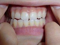 ★歯フェチ写真★19歳女子大生の歯