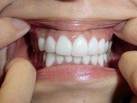 ★歯フェチ写真★アロママッサージのお姉さまの差し歯