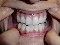 ★歯フェチ写真★26歳美人秘書の歯