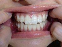 ★歯フェチ写真★20歳黒髪女子大生の歯