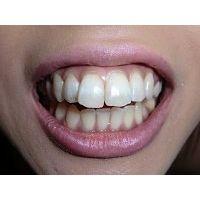 ★歯フェチ写真★ギャル系デリヘルガールの歯の移り変わり  ダウンロード